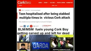 BLM/MSM fuels young Cork Boy getting carved up and left for dead