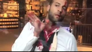 Proud Jew Left Bloodied at Anti Israeli Protest in NYC