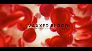 VAXXED Blood - Blood Transfusion From The Vaccinated