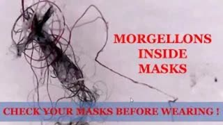 MORGELLONS ON SLAVE MASKS, SWABS, EVERYWHERE!!!!