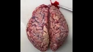 What Does Thromboses in the Brain Due to the 'Clot Shot' Look Like? Apparently From Such an Autopsy