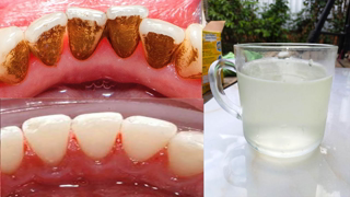 How to remove plaque from teeth at home naturally In 3 Minutes with baking soda