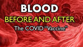 """Vetted Images - Blood Before and After the mRNA COVID """"Vaccine"""" Shot (Think Blood Clots)"""